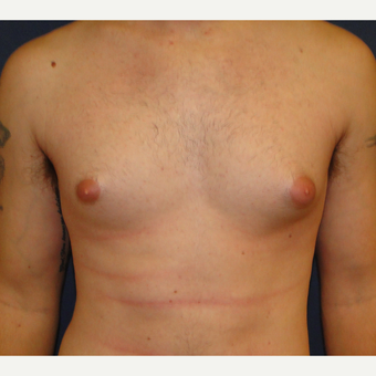 18-24 year old man treated with Male Breast Reduction before 3241111