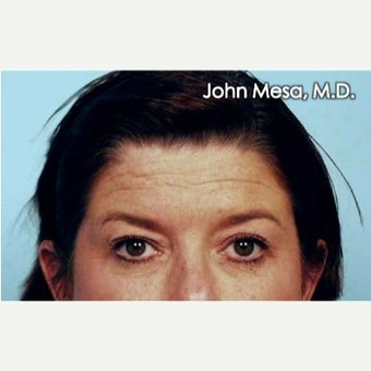 35-44 year old woman treated with Endoscopic Forehead Lift
