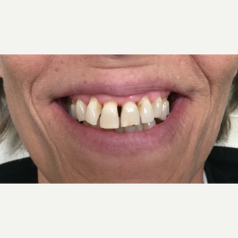 35-44 year old woman treated with Dental Bonding before 3554005