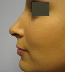 Rhinoplasty   after 132701