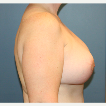 Breast Implants With Lift after 3610212