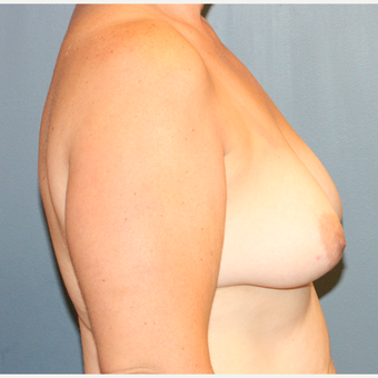 Breast Implants With Lift before 3610212