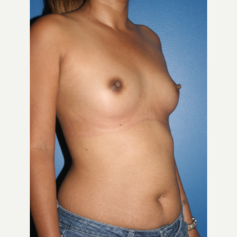 25-34 year old woman treated with Breast Augmentation before 3788724