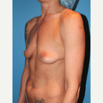 35-44 year old woman treated with Breast Augmentation before 3549736
