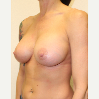35-44 year old woman treated with Breast Augmentation after 3549736