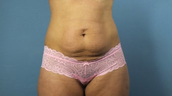 Tummy Tuck before 203137