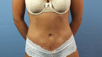 Tummy Tuck after 203137