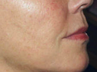 Mesotherapy after 920818