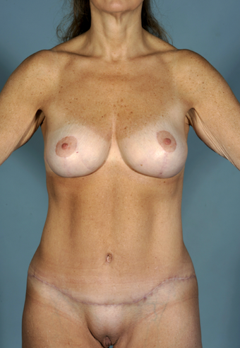 Before Breast Lift and Tummy Tuck after 1078196
