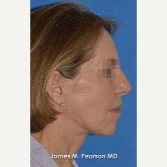 55-64 year old woman treated with Facelift after 3814872