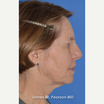55-64 year old woman treated with Facelift before 3814872