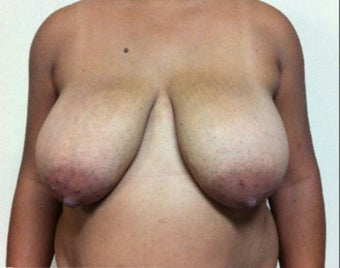 25-34 year old woman treated with Breast Reduction before 3492236