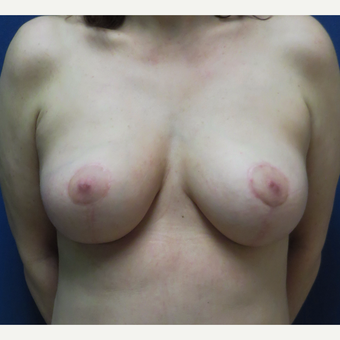 45-54 year old woman treated with Breast Lift after 3220479