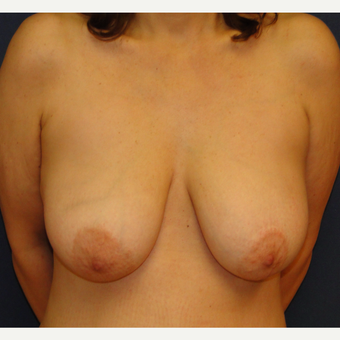 45-54 year old woman treated with Breast Lift before 3220479