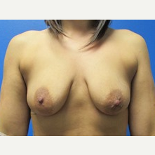 5'6 160lbs Breast Augmentation with Lift 465cc Implants before 3371033