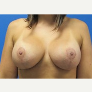 5'6 160lbs Breast Augmentation with Lift 465cc Implants after 3371033
