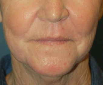 Chemical Peel 925600