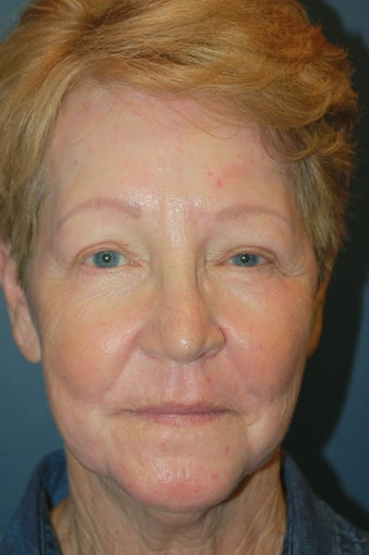 Chemical Peel after 925600