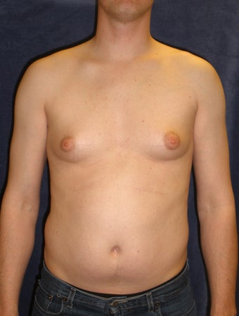 Male Breast Reduction before 407641