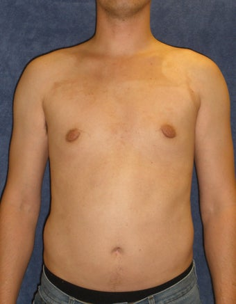 Male Breast Reduction after 407641