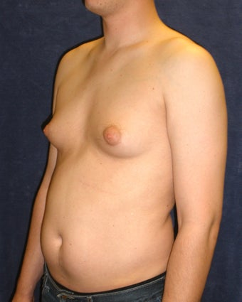 Male Breast Reduction 407641