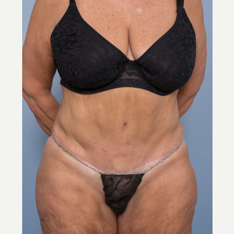 55-64 year old woman treated with Abdominoplasty and Ventral Hernia Repair after 3532543