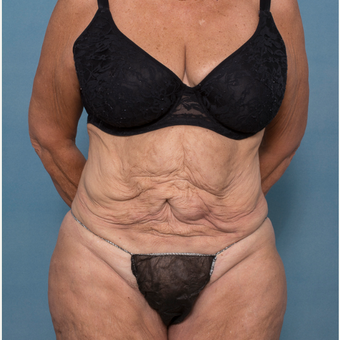 55-64 year old woman treated with Abdominoplasty and Ventral Hernia Repair before 3532543