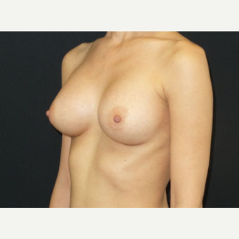 25-34 year old woman treated with Breast Implants after 3650895