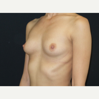 25-34 year old woman treated with Breast Implants before 3650895