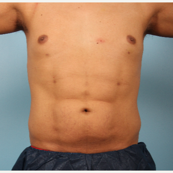 25-34 year old man treated with Abdominal Etching after 3339253