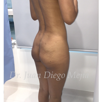 25-34 year old woman treated with Butt Implants before 2692697