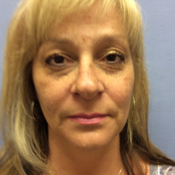 55-64 year old woman treated with Eyelid Surgery before 3181122