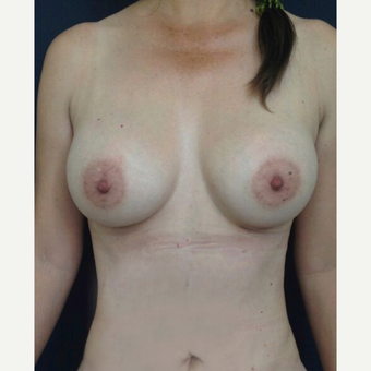 25-34 year old woman treated with Breast Augmentation after 3826472