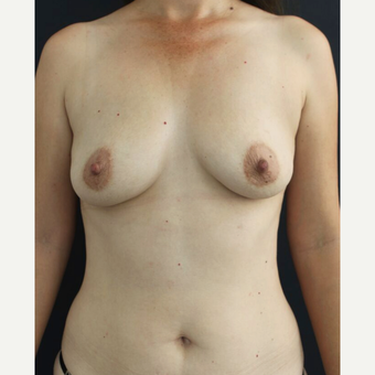 25-34 year old woman treated with Breast Augmentation before 3826472