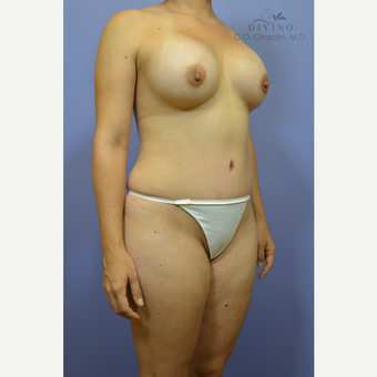 25-34 year old woman treated with Mommy Makeover after 3421619