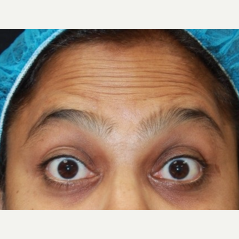 38 year old female treated with Botox for forehead wrinkles before 3072478