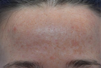 25-34 year old woman treated with Fractional Laser before 3141122