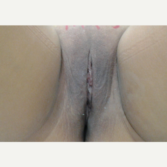 45-54 year old woman treated with Vaginoplasty after 3043380