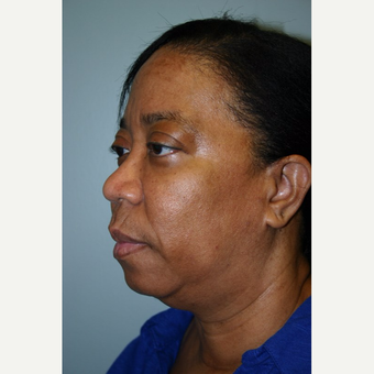 55 year old woman treated with Facelift before 3667703