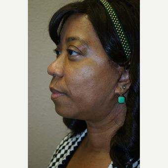 55 year old woman treated with Facelift after 3667703