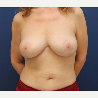 48 year old female who had a breast lift after weight loss for saggy breasts after 2998894