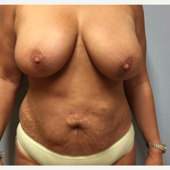 Breast Reduction/Lift before 3284036