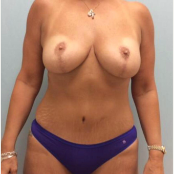 Breast Reduction/Lift after 3284036