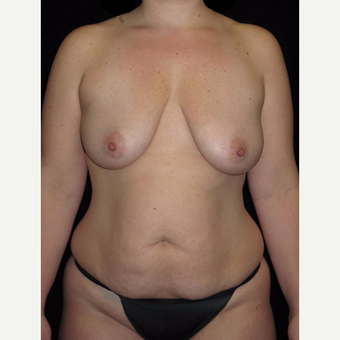 35-44 year old woman treated with Mommy Makeover before 3802781