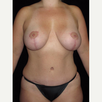 35-44 year old woman treated with Mommy Makeover after 3802781