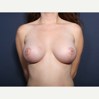 25-34 year old man treated with Breast Lift with Implants (view 1 of 2) after 3109831