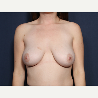 25-34 year old man treated with Breast Lift with Implants (view 1 of 2) before 3109831