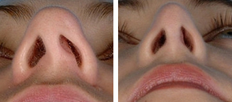 Functional Rhinoplasty before 1208310
