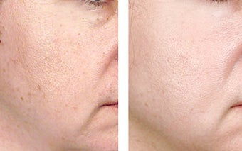 TCA Chemical Peel with 35% TCA before 6346
