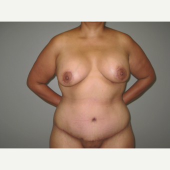 35-44 year old woman treated with Mommy Makeover: 24 hour recovery breast augmentation and TT after 3005444